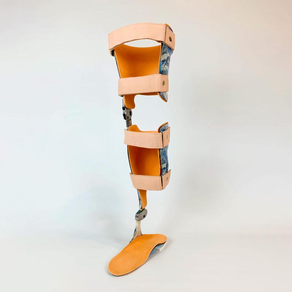 KAFO (Knee Ankle Foot Orthosis) mit gesperrtem Knie und Pero-Feder.